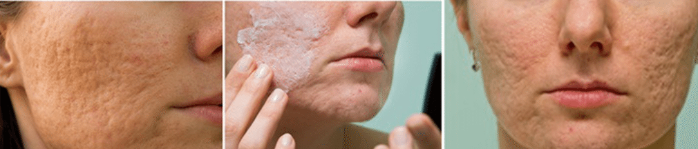 Acne scars treatment - Clear Medical
