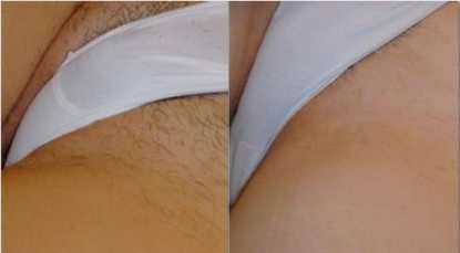 Bikini_laser_hair_removal_case_study_pic_06