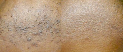 Before and after ingrown hairs laser treatment - Clear Medical
