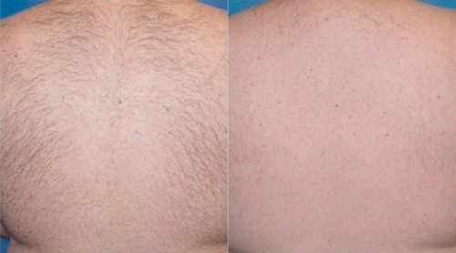 before and after laser hair removal on back - Clear Medical