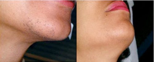 Before and after laser hair removal on chin