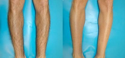 Before and after laser hair removal on legs - Clear Medical
