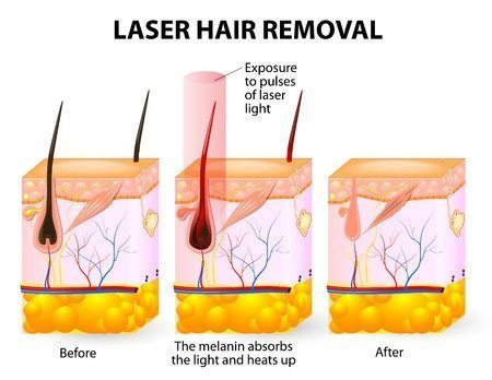 IPL Laser Hair Removal image before and after treatment - Clear Medical
