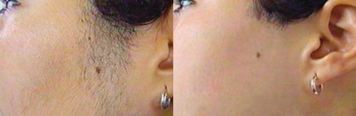Sideburns-hair-removal-case_study_pic_04