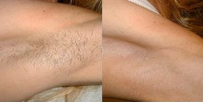 Underarms-case_study_pic_05