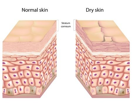 dry skin cream is used due to the stratum corneum being crusted