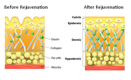 Diagram showing the effects of Skin rejuvenation on skin before and after Clear Medical