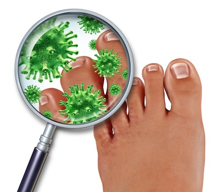 Treatment for fungal infections - Clear Medical