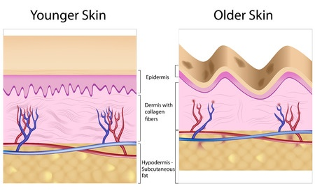 Diagram showing the different layers of old and younger skin