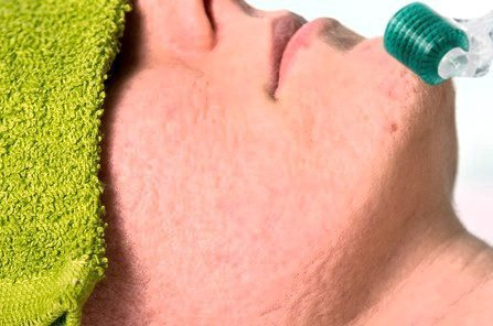 Microneedling Acne Scars - Acne Scarring Treatment