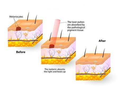 pigment and skin laser diagram