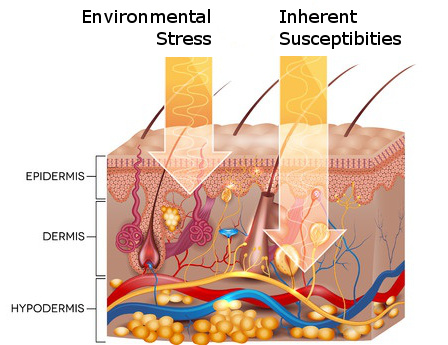 Diagram of different layers of skin showing epidermis, dermis, and hypodermis.