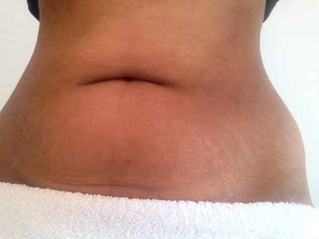 stretch marks stretch mark removal