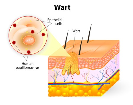 Clear Medical - Diagram of wart on skin - WARTS