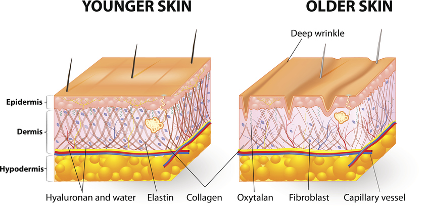Radiofrequency Stimulates Fibroblasts Clear MedicalAgeing