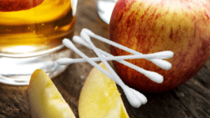 apple cider vinegar for treating warts - 100% natural and safe