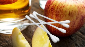 apple cider vinegar for treating warts - 100% natural and safe